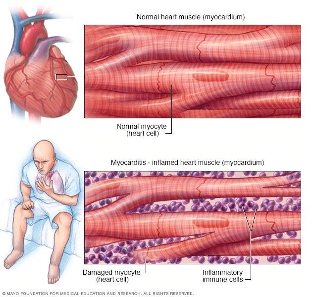 Đang tải myocarditis.jpg…